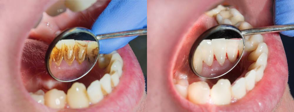 Porqué deberías hacerte una limpieza dental más a menudo