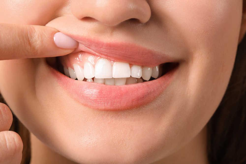 Salud e imagen: los dos objetivos de las personas que cuidan de su boca